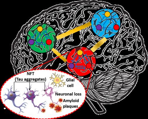 Alzheimer's Disease Progression
